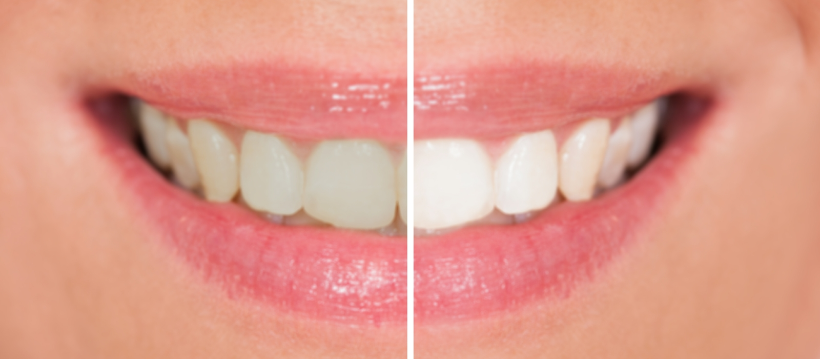Teeth Whitening Columbia SC