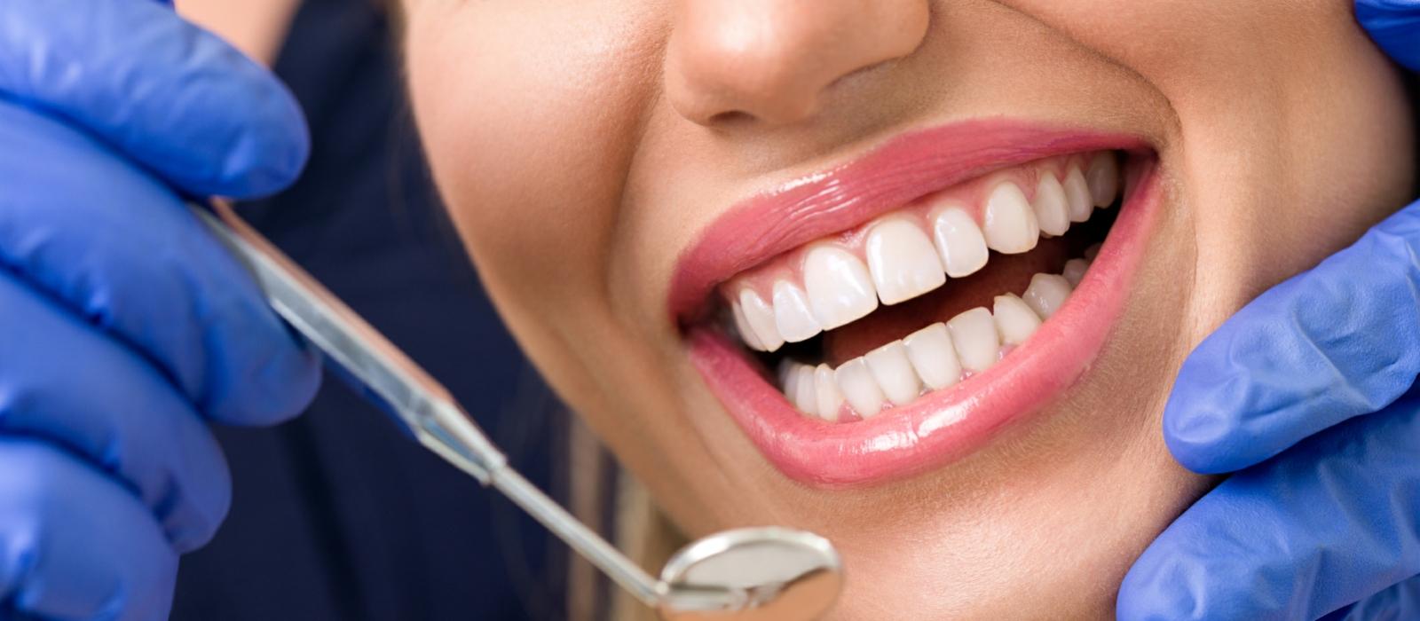 Dental Bonding Columbia SC