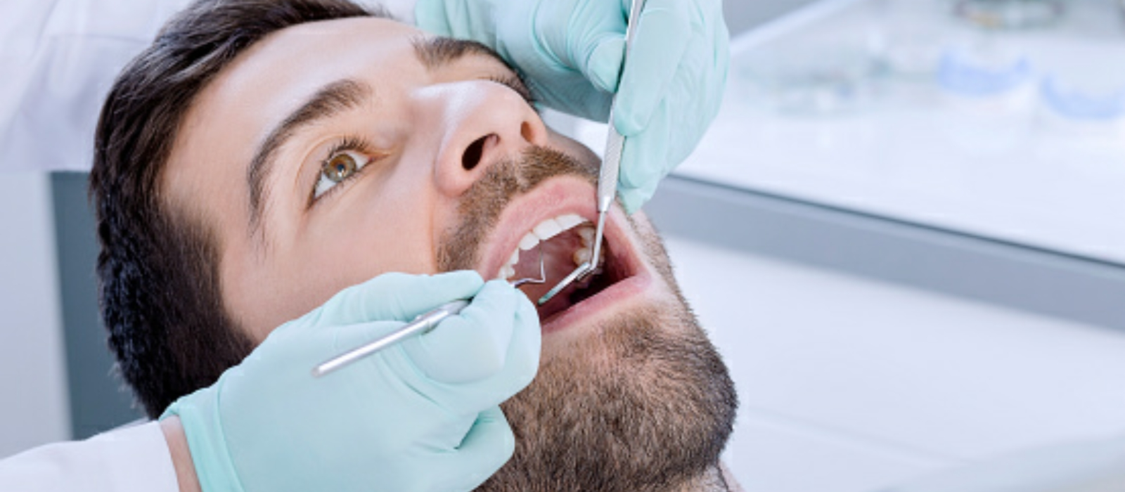 Columbia SC Dental Cleanings