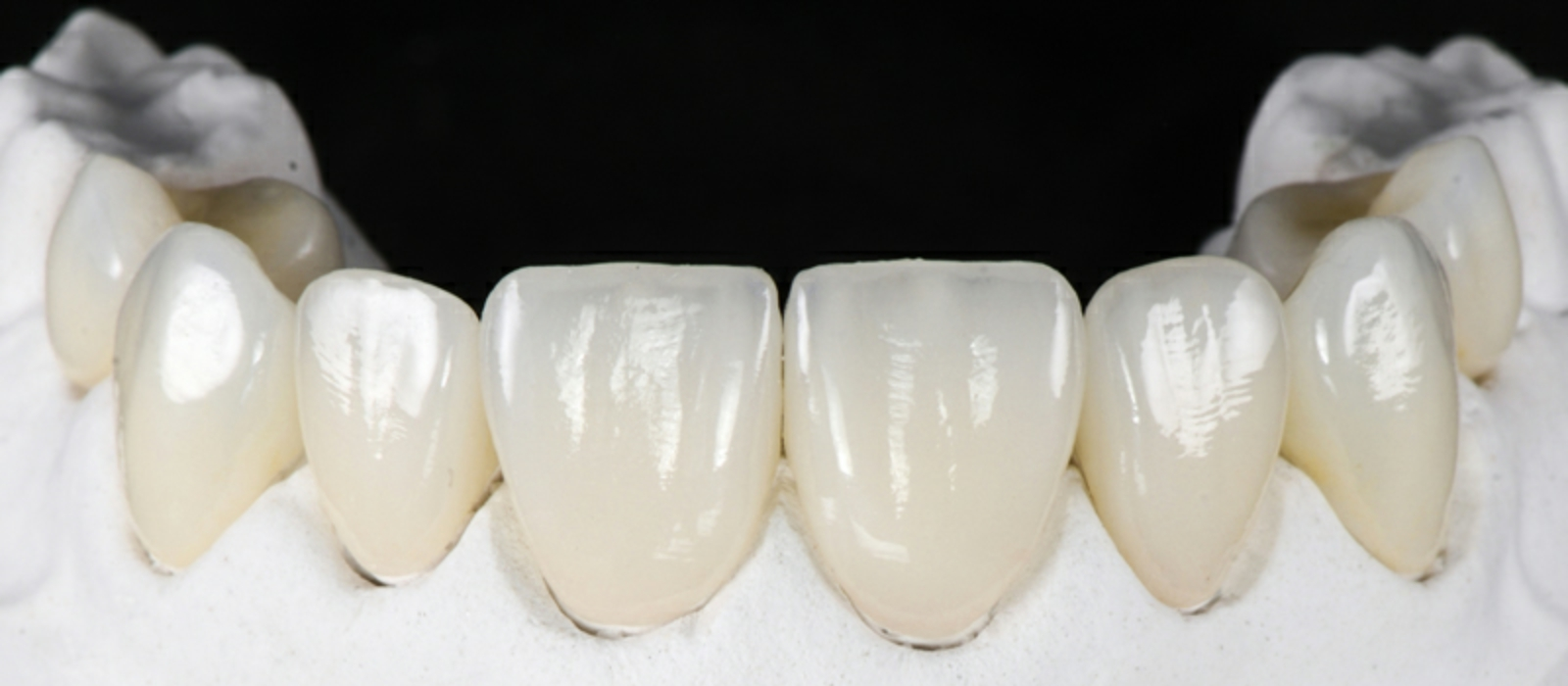 Dental Crowns Columbia SC