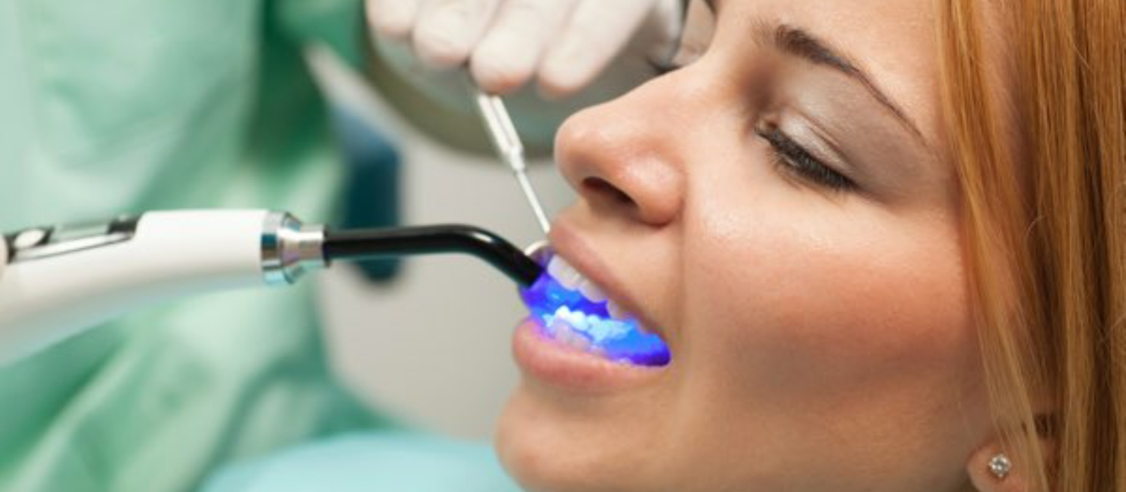 Dental Fillings Columbia SC