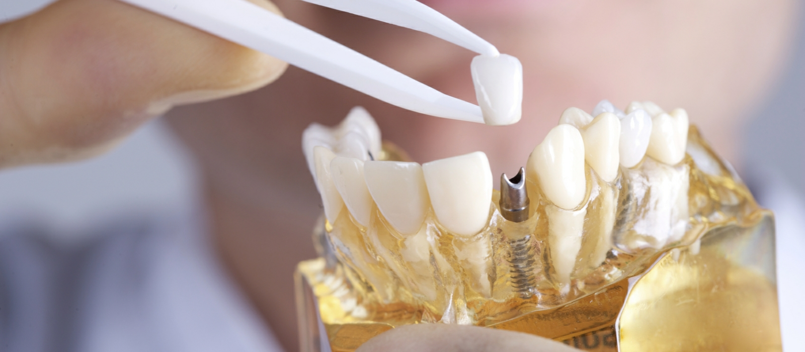 Dental Implants Columbia SC