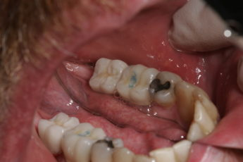 Columbia SC Dental Implant