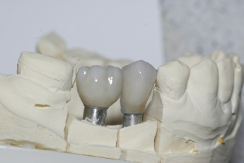 Dental Implant Mold Example