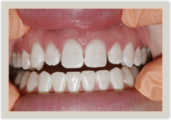 Columbia SC Dental Bonding Before