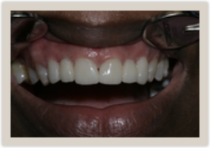 Columbia SC Dental Bridges After