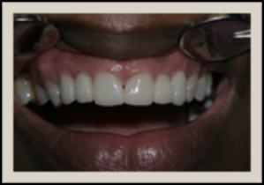 Columbia SC Dental Bridges After