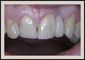 Columbia SC Dental Bridges Before 2