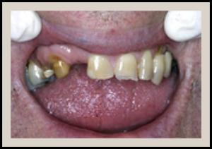 Columbia SC Dental Bridges Before 3