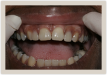 Columbia SC Dentures After