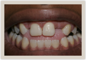 Columbia SC Dentures Before